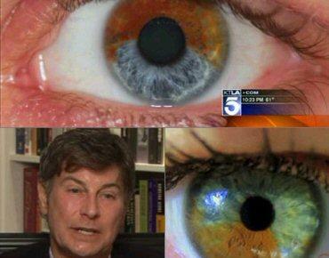 0f1594137 Crédito da Foto: Oftalmologista diz que pode mudar cor dos olhos