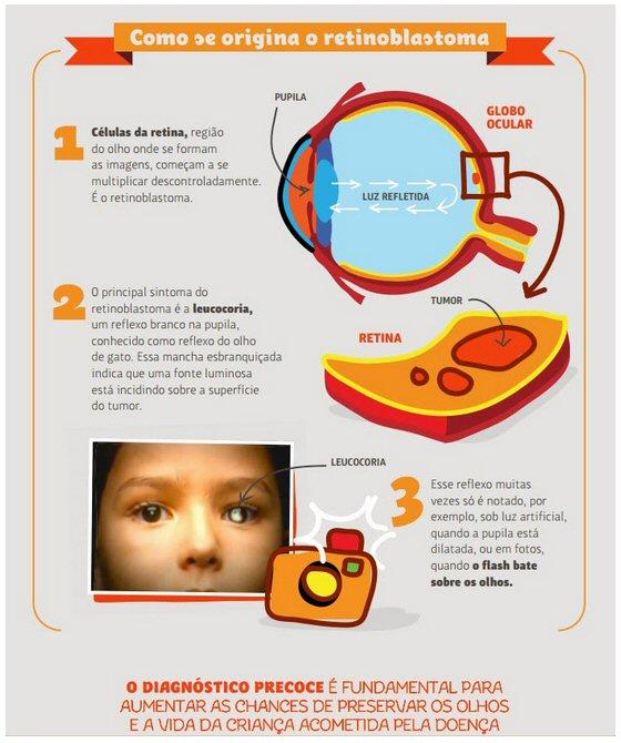 fb48a9ebc A TUCCA é referência internacional no tratamento do retinoblastoma. Para  falar sobre essa experiência bem-sucedida da Associação, Sidnei Epelman  participará ...