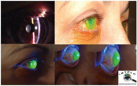 793c4f5b4 Artigo Prof. Sergey Cusato Jr / Lentes Esclerais (Scleral Lenses)